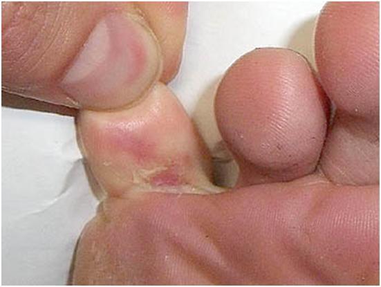 Athletes foot on a woman vagina