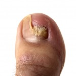 Nail yeast Infection