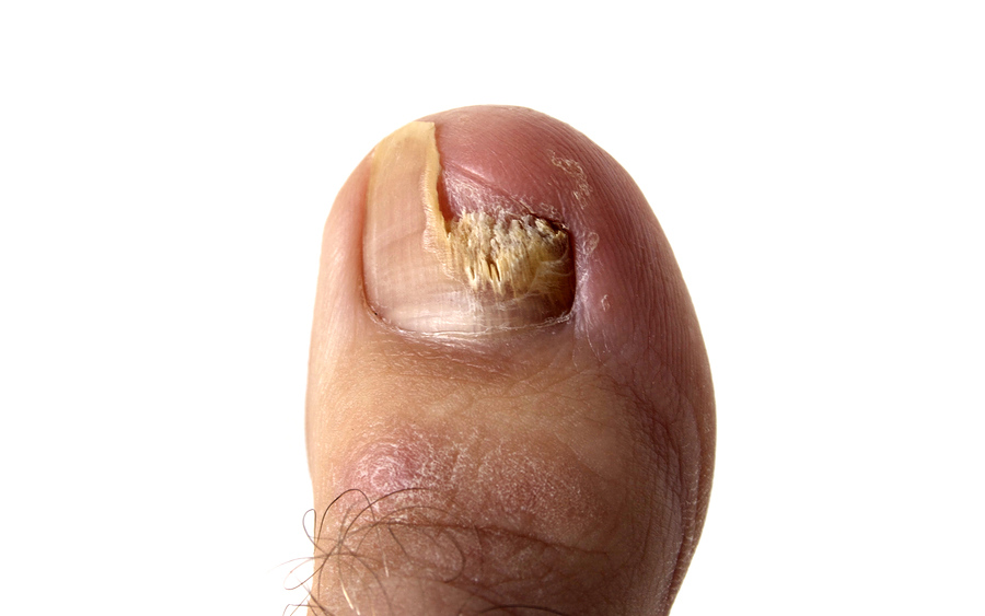 Skin and Nail Yeast Infection Symptoms