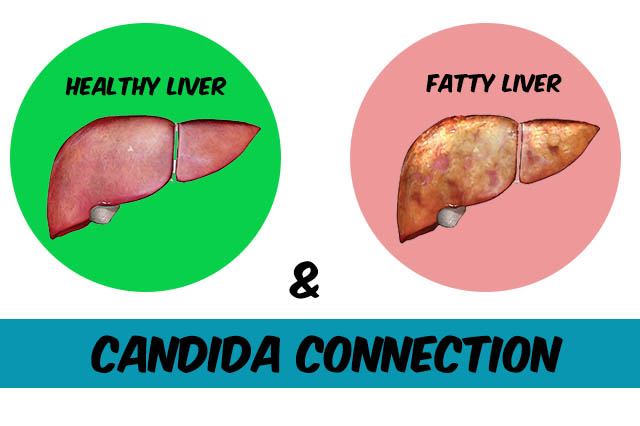 fatty liver and candida connection